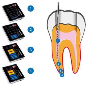 Localizador de ápice Propex Pixi de la marca Dentsply Maillefer. Deposito Dental Dentalmex Tienda Online